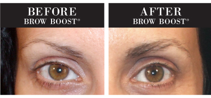 Brow Boost Before And After